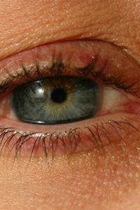 la maladie des yeux secs